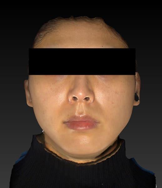 アラガン強力小顔ボトックス 1ヶ月後のBefore写真