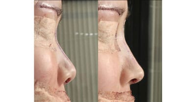 鼻中隔延長、鼻尖軟骨移植、鼻尖縮小、I型プロテーゼ 手術直後