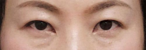 切らない眼瞼下垂プレミアム 1ヶ月後のAfterの写真