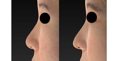 鼻尖縮小、鼻尖軟骨移植 3ヶ月後