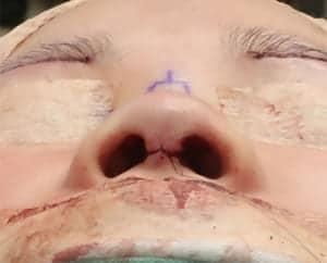 鼻中隔延長、鼻尖軟骨移植、鼻尖縮小、I型プロテーゼ 手術前 下から