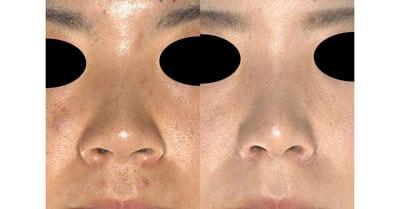 鼻尖縮小、軟骨移植、ストラット、鼻翼縮小(内側+外側) 6ヶ月後
