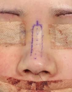 鼻中隔延長、鼻尖軟骨移植、鼻尖縮小、I型プロテーゼ 手術前 正面