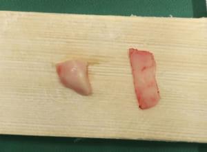 採取した耳介軟骨と鼻中隔軟骨