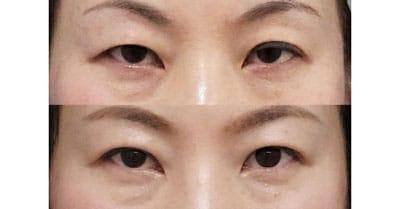 切らない眼瞼下垂プレミアム 1ヶ月後