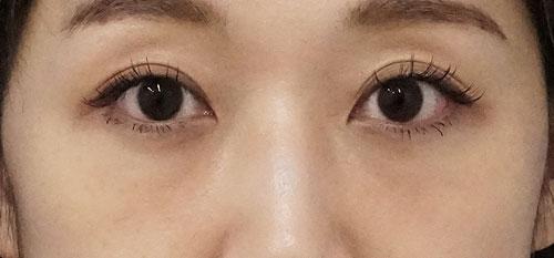 目の下脂肪取り、コンデンス脂肪注入(目の下) 1ヶ月後のAfterの写真