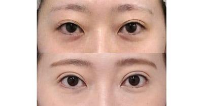全切開、挙筋前転術(眼瞼下垂)、目尻切開 6ヶ月後