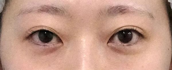 全切開、挙筋前転術(眼瞼下垂)、目尻切開 6ヶ月後のBefore写真