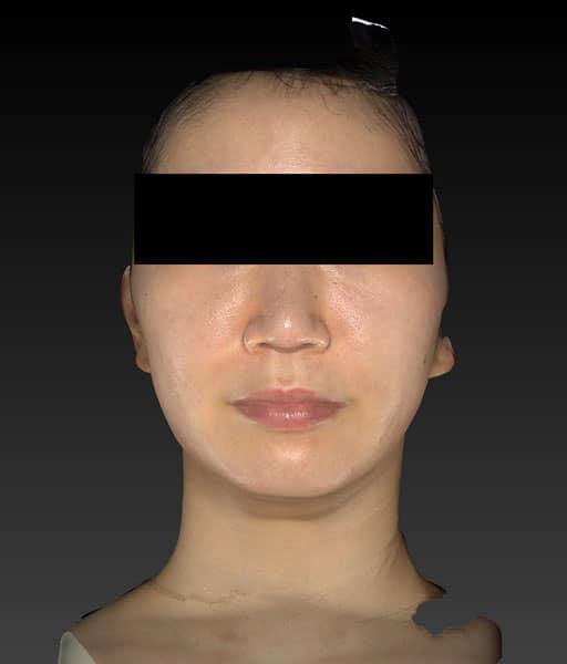 小顔脂肪吸引(ホホ・アゴ下・ほうれい線上) 3ヶ月後 正面のAfterの写真
