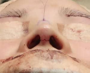 鼻中隔延長、鼻尖軟骨移植、鼻尖縮小、I型プロテーゼ 手術直後 下から