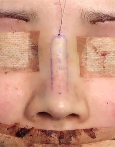 鼻中隔延長、鼻尖軟骨移植、鼻尖縮小、I型プロテーゼ 手術直後 正面