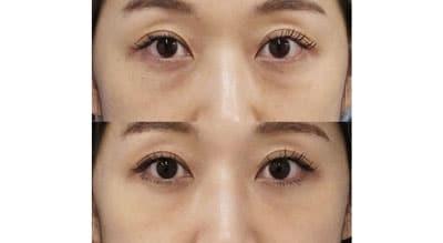 目の下脂肪取り、コンデンス脂肪注入(目の下) 手術直後~1ヶ月後