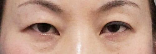 切らない眼瞼下垂プレミアム 1ヶ月後のBefore写真