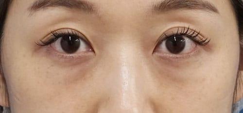 目の下脂肪取り、コンデンス脂肪注入(目の下) 1ヶ月後のBefore写真