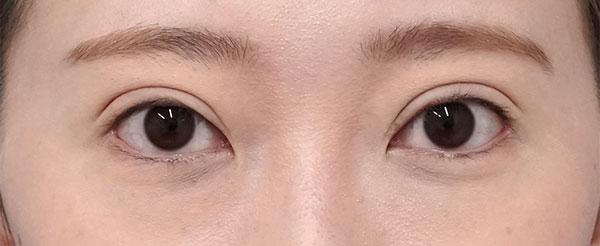 全切開、挙筋前転術(眼瞼下垂)、目尻切開 6ヶ月後のAfterの写真