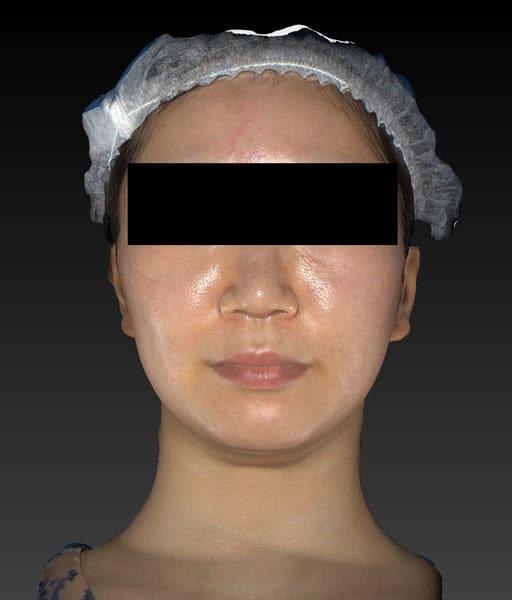 小顔脂肪吸引(ホホ・アゴ下・ほうれい線上) 3ヶ月後 正面のBefore写真