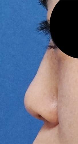 鼻尖縮小、軟骨移植、ストラット、I型プロテーゼ 手術前 左側面