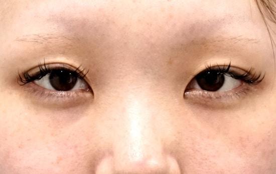 スマートバランス、目頭切開(Z形成)、涙袋ヒアルロン酸3か月後のBefore写真