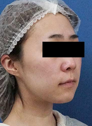 ホホ・アゴ下脂肪吸引、VOVコグリフト 1ヶ月後 右斜めのBefore写真