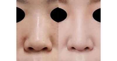 鼻尖縮小、軟骨移植、ストラット、I型プロテーゼ 半年後
