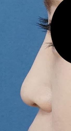 鼻尖縮小、軟骨移植、ストラット、I型プロテーゼ 半年後 左側面
