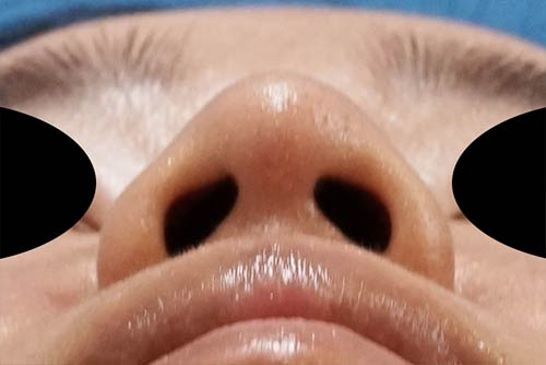 鼻尖縮小、軟骨移植 3ヶ月後 下からのAfterの写真