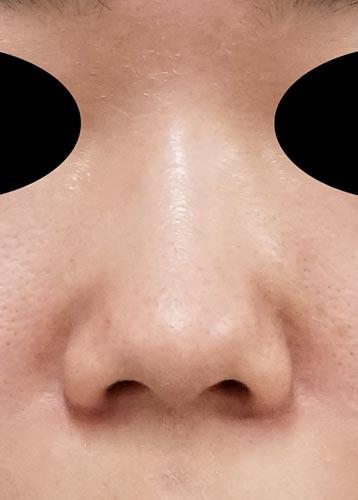 鼻尖縮小、軟骨移植 3ヶ月後 正面のBefore写真