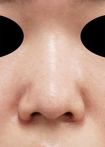 鼻尖縮小、軟骨移植 3ヶ月後 正面のAfterの写真