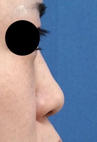 鼻尖縮小、軟骨移植、ストラット、I型プロテーゼ 半年後 右側面のBefore写真