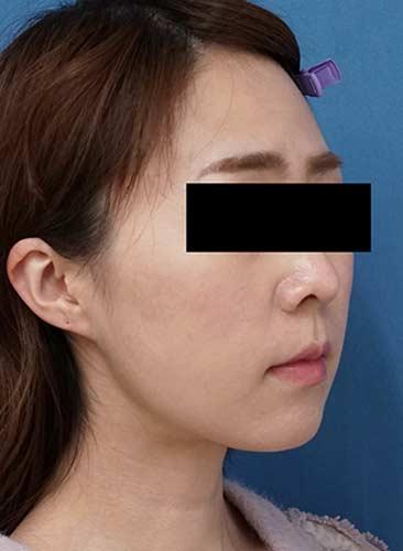 ホホ・アゴ下脂肪吸引、VOVコグリフト 1ヶ月後 右斜めのAfterの写真