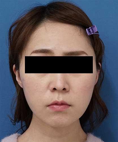 ホホ・アゴ下脂肪吸引、VOVコグリフト 1ヶ月後 正面のAfterの写真