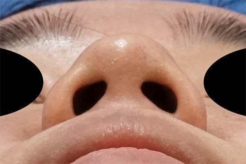 鼻尖縮小、軟骨移植 3ヶ月後 下からのBefore写真