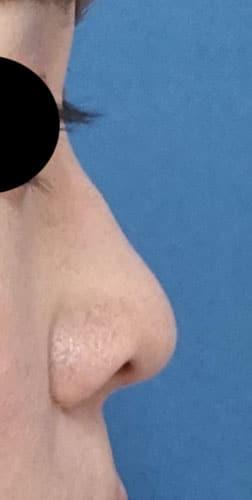 鼻尖縮小、軟骨移植 半年後 右側面