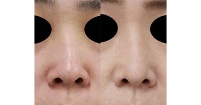 鼻尖縮小、軟骨移植 半年後