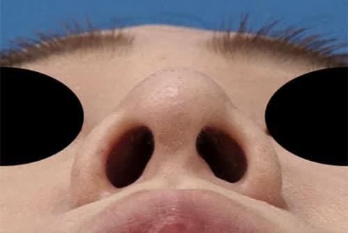 鼻尖縮小、軟骨移植 半年後 下から