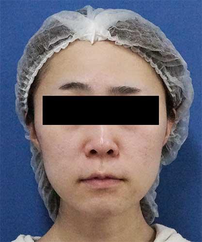 ホホ・アゴ下脂肪吸引、VOVコグリフト 1ヶ月後 正面のBefore写真