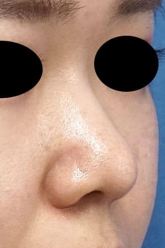 鼻尖縮小、軟骨移植 3ヶ月後 右斜めのAfterの写真