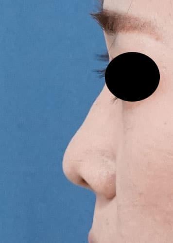 鼻尖縮小、軟骨移植 半年後 左側面