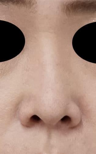 鼻尖縮小、軟骨移植 半年後 正面