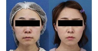 ホホ・アゴ下脂肪吸引、VOVコグリフト 5日後、1ヶ月後