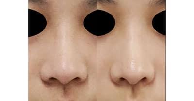 鼻翼縮小(内側法+外側法) 3ヶ月後