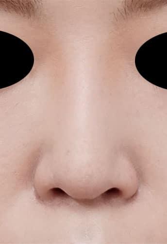 鼻尖縮小、軟骨移植、ストラット、I型プロテーゼ 半年後 正面