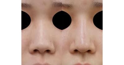 鼻中隔延長、鼻尖縮小、プロテーゼ 1ヶ月後