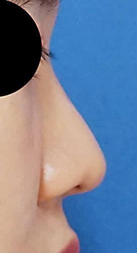 鼻尖縮小、軟骨移植、ストラット 3ヶ月後 右側面のAfterの写真