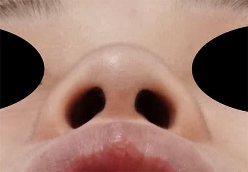 鼻中隔延長、鼻尖縮小、プロテーゼ 1ヶ月後 下からのBefore写真