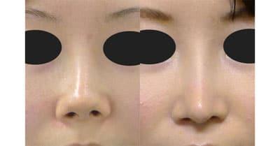 鼻中隔延長、鼻尖縮小、I型プロテーゼ 3か月後