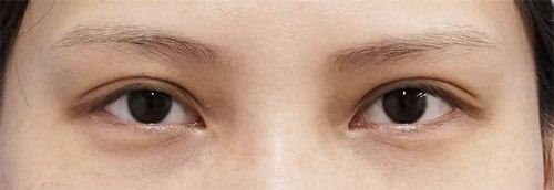 切らないデカ目2点セット(切らない眼瞼下垂、切らないタレ目) 1ヶ月後のBefore写真