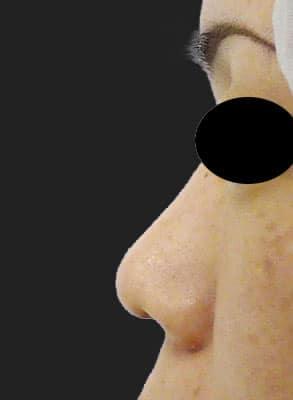 鼻柱基部下降(軟骨移植) 半年後 左側面のBefore写真