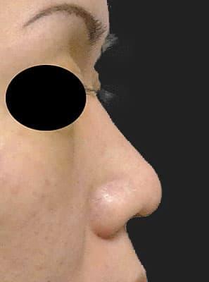 鼻柱基部下降(軟骨移植) 半年後 右側面のBefore写真