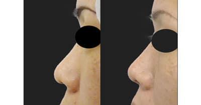 鼻柱基部下降(軟骨移植) 半年後
